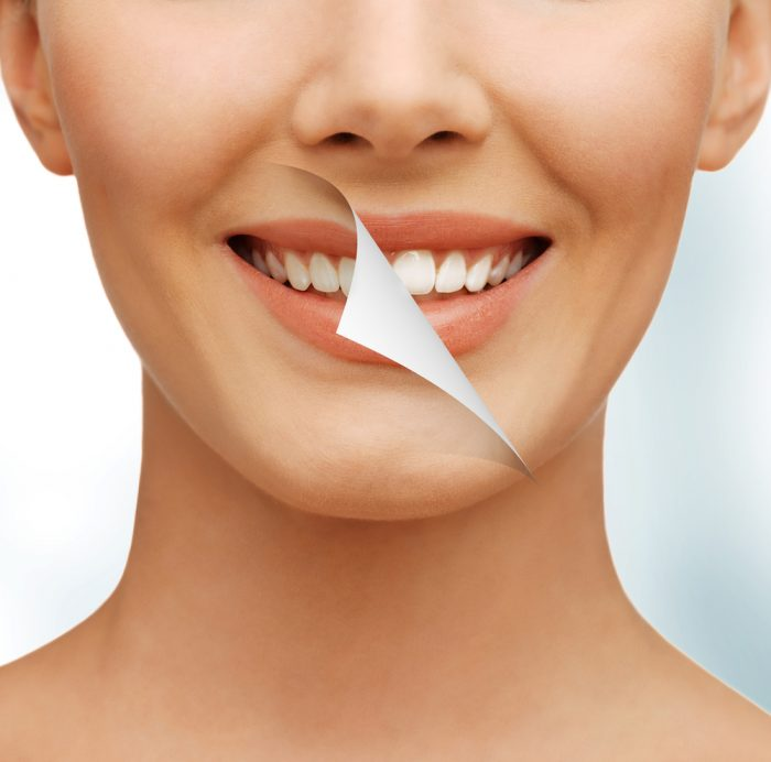 who is the best cosmetic dentist in tampa fl for teeth whitening?